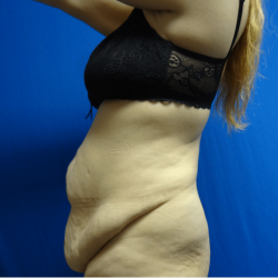 Manhattan abdominoplasty before 10